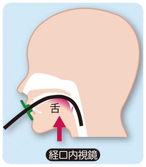 経口内視鏡